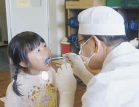 大きく口を開けながら歯科の検査を受ける幼児