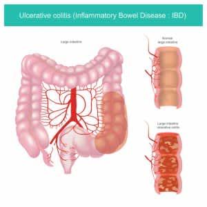 病原性大腸菌が代謝能を変化させて増殖優位性を獲得する仕組みを発見