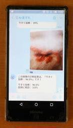 床ずれの写真を送信すると重症度に応じて必要な行動が示されるアプリ