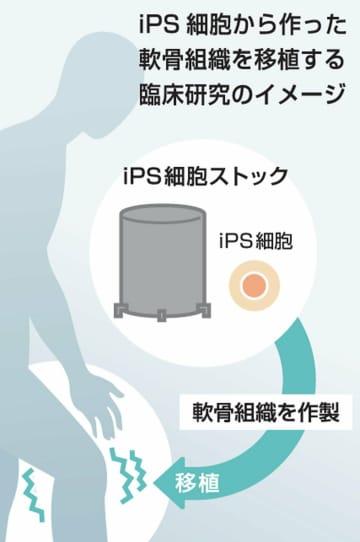 【図解】iPS細胞で作った軟骨組織を移植する臨床研究のイメージ