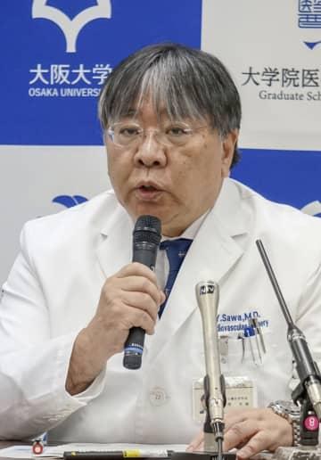 「細胞スプレー法」について記者会見する大阪大の澤芳樹教授=29日、大阪府吹田市