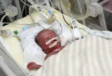 ドナーミルクの提供を受けたことがある赤ちゃん=23日、東京都品川区の昭和大病院