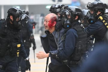 Police detain an injured man after police dispersed a crowd gathered for the 'universal siege on communists' rally at Chater Garden in Hong Kong on Sunday. (AFP ph oto)