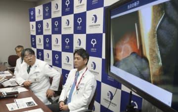 iPS細胞から作った「心筋シート」を重症心不全患者の心臓に移植する治験(右画面)について発表する大阪大の澤芳樹教授(中央)ら=27日午後、大阪府吹田市