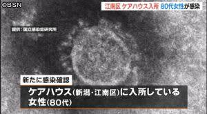 新型コロナウイルス 新潟市で新たに女性1人の感染確認