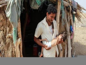 Hunger stalks children in Yemen as UN cuts aid programs