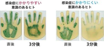 """感染症にかかりにくいヒトの""""手指""""にはバリア機能がある、花王が発見"""