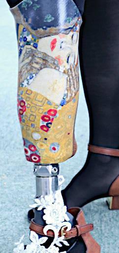 高木庸子さんの義足を彩った『接吻』のイラスト(野間麻子さん提供)