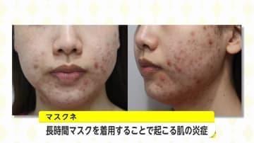 マスク生活による肌トラブル「マスクネ」とは?医師が勧めるニキビ・湿疹予防のスキンケアとマスク選び 画像