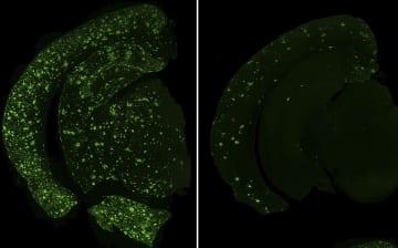 マウスの脳に蓄積したアミロイドベータ(緑色)の顕微鏡写真。ゲノム編集で遺伝子の特定の領域をなくしたマウス(右)は、特定の領域が残っているマウス(左)よりも蓄積が少ない(永田健一・理研研究員提供)