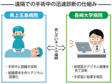 遠隔での手術中の迅速診断の仕組み