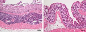 マイクロRNAを投与した腸炎マウスの腸管(右)と投与していない腸炎マウスの腸管(大阪大提供)