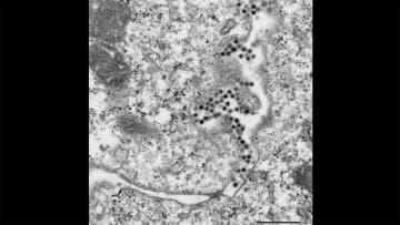 「風疹」30~50代の男性に感染拡大 働く世代は要注意