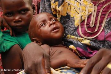 専門学校のキャンプに暮らす幼児。3ヵ月もの間、仮設住宅や十分な食料が無い状態が続いている(2018年8月15日撮影)
