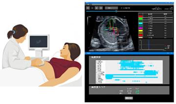 AIを用いた胎児心臓超音波スクリーニングのイメージ。(画像: 理化学研究所)