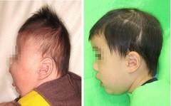 乳幼児の頭蓋骨変形へ新治療法