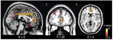 オキシトシン反復投与で脳活動改善効果を有意に認めたヒト脳の内側前頭前野。(画像:日本医療研究開発機構発表資料より)