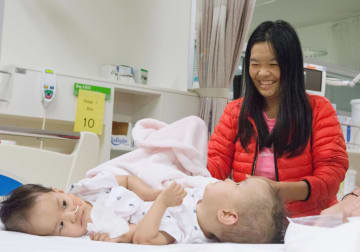 母親に見守られる、分離手術前のダワちゃんとニマちゃん=9日、オーストラリア南東部メルボルン(王立小児病院クリエーティブスタジオ提供・共同)