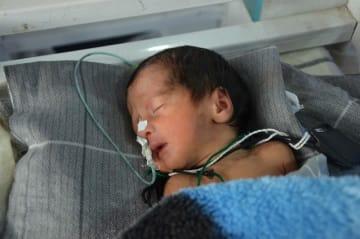 MSFのホースト産科病院では1日100件もの出産を扱う © Kate Stegeman/MSF