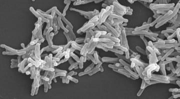 通常の結核菌の電子顕微鏡写真(結核予防会結核研究所提供)