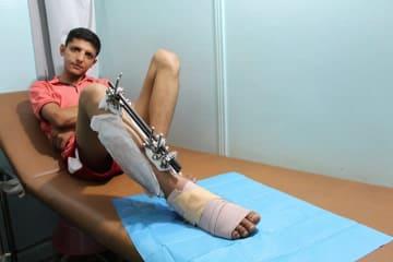撃たれた脚の感染処置を受け次の手術に備える青年。脚は完治しないことがわかり希望も失っている © Alva Simpson White/MSF