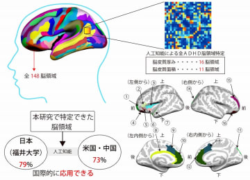 ADHDの脳の構造に関する研究のイメージ図(福井大学提供)