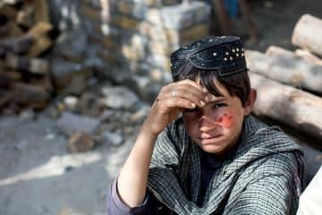 バスで3時間かけて皮膚リーシュマニア症の治療センターへ来た少年 © Khaula Jamil