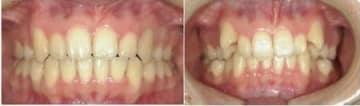八重歯を矯正する前(右)とした後の画像。保険の適用外だった(京都府歯科医師会の太田理事提供)