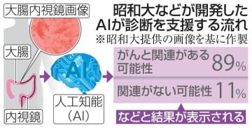 昭和大などが開発したAIが診断を支援する流れ