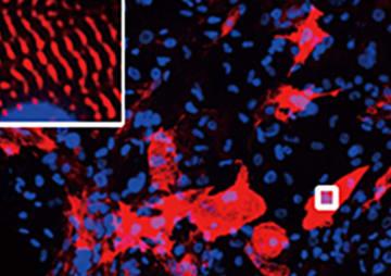 マウスの線維芽細胞から変化させた心筋細胞(赤い部分)。左上の囲まれた部分は、右下の四角の部分を拡大したもの(筑波大の家田真樹教授提供)