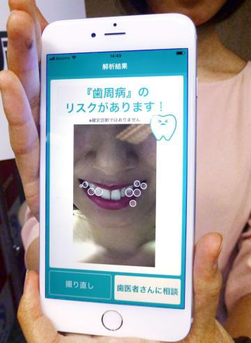 スマートフォンのカメラで口の疾患を発見する機能の試作品=21日午後、東京都千代田区