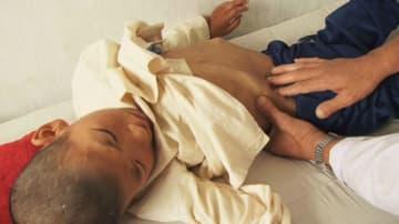 北朝鮮黄海南道の子ども病院で、診察を受ける激しい栄養失調状態の子ども=2011年8月20日(WFP提供・共同)