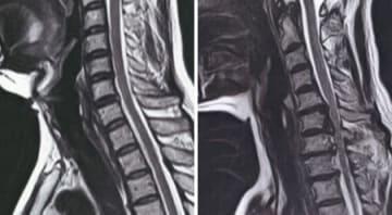 左を向いた人の頸椎部分を比較したMRI画像。(左)は正常な人で、脊柱管を通る神経が真っすぐ延びている。(右)は神経障害の出た人で、背骨の関節が出っ張り、神経に接触している